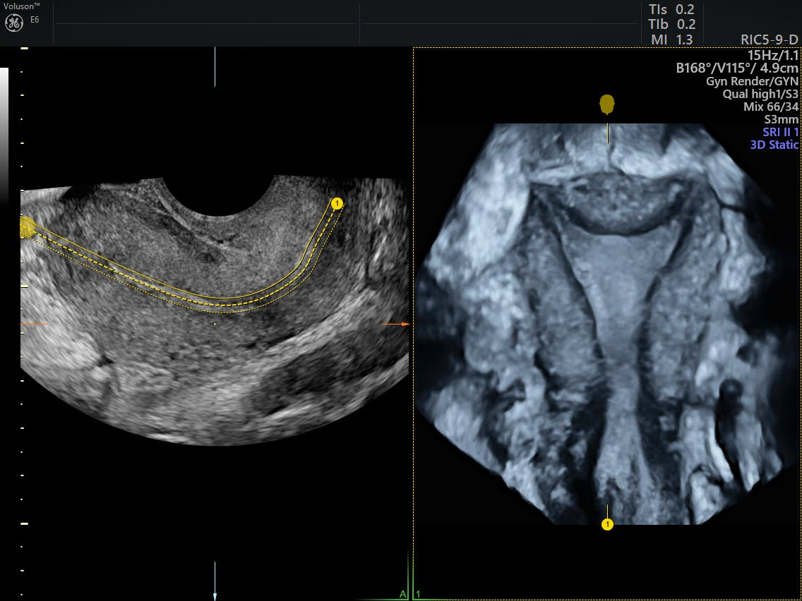 uterine ablation post surgical instructions